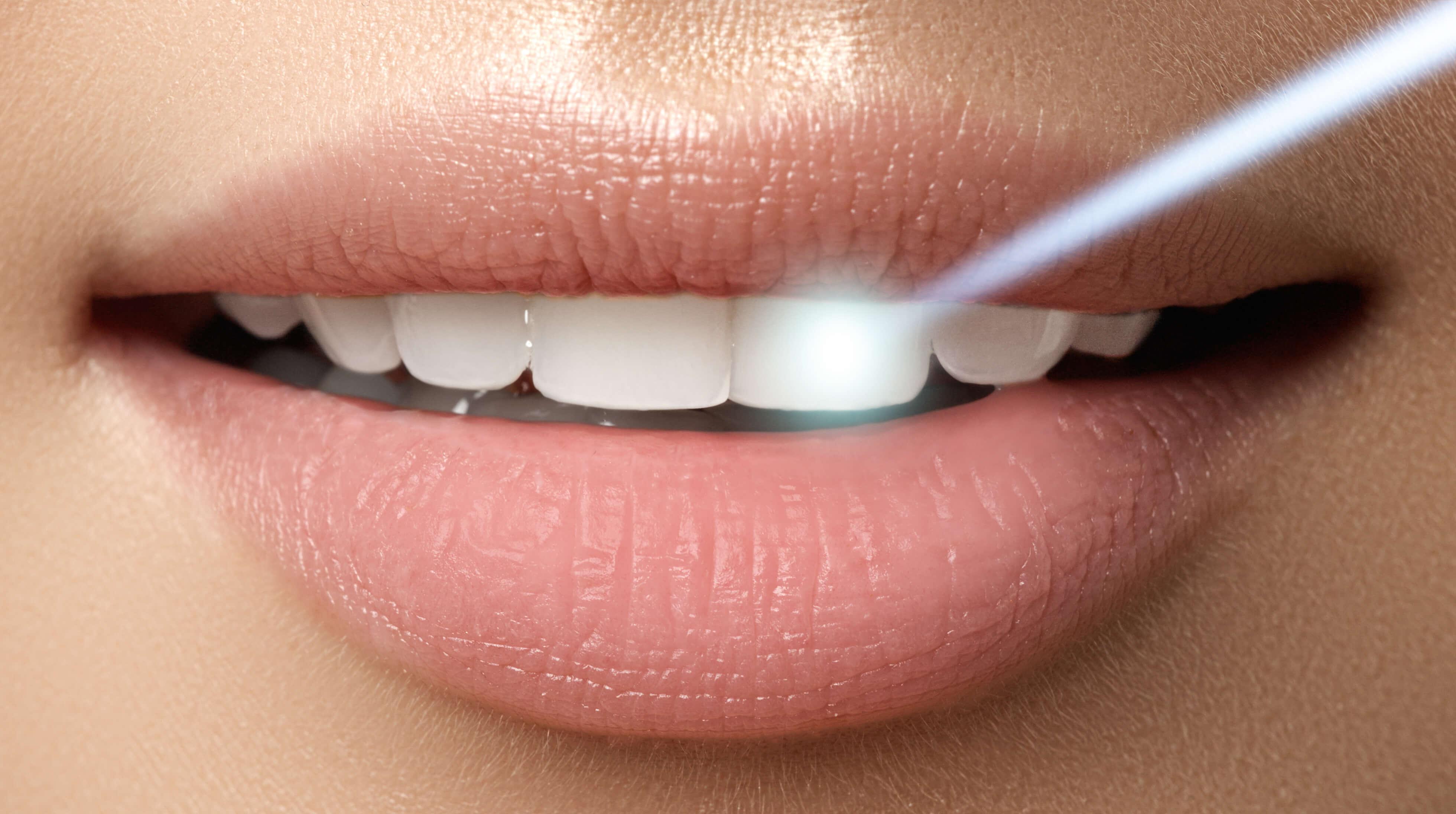 Dental-Laser-Technology